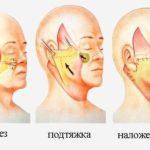 Подтяжка (лифтинг) кожи лица и шеи
