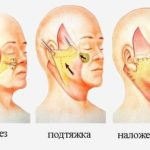 Подтяжка (лифтинг) кожи и мышц лица и шеи