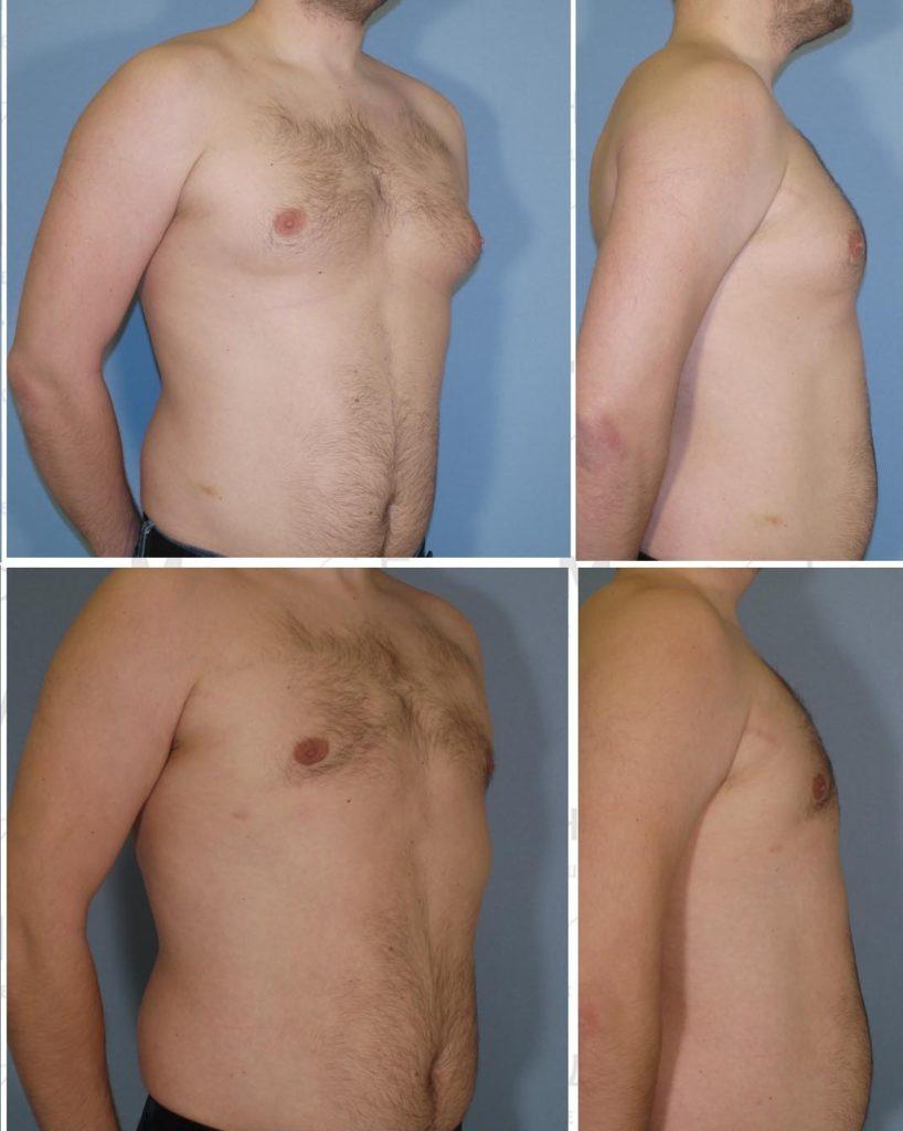 Гинекомастия у мужчин. Фото до и после мамморедукции