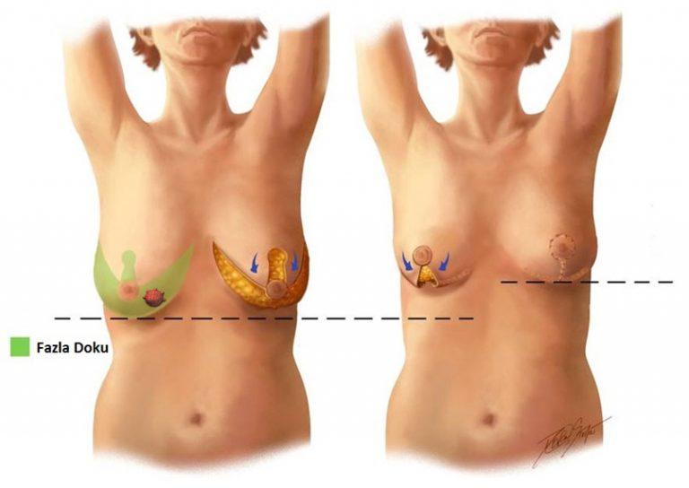 Операция уменьшение груди