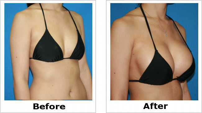Грудные импланты до и после операции