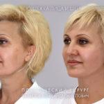 Пластическая хирургия в Москве: ТОП-5 пластических операций