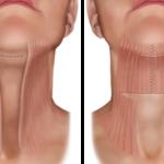 Платизмопластика или подтяжка шеи