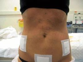 Липосакция: сразу после операции