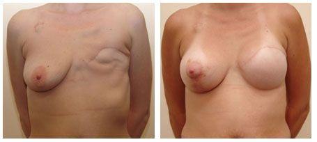 реконструкция молочной железы после мастэктомии