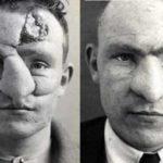 5 интересных фактов о пластической хирургии